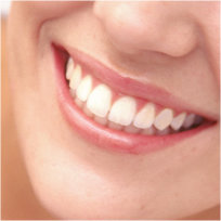 Pleasanton Teeth Whitening